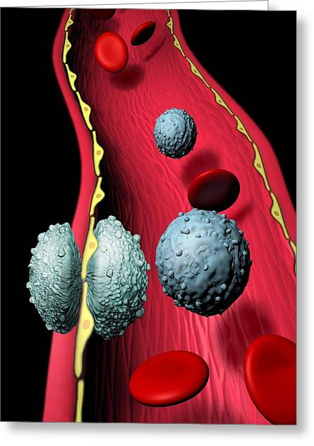Lymphocyte Greeting Cards - White Blood Cells Greeting Card by Hans-ulrich Osterwalder