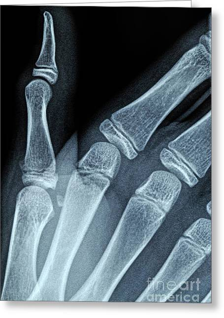 Medical X-ray Greeting Cards - X-ray image of boys hand Greeting Card by Sami Sarkis