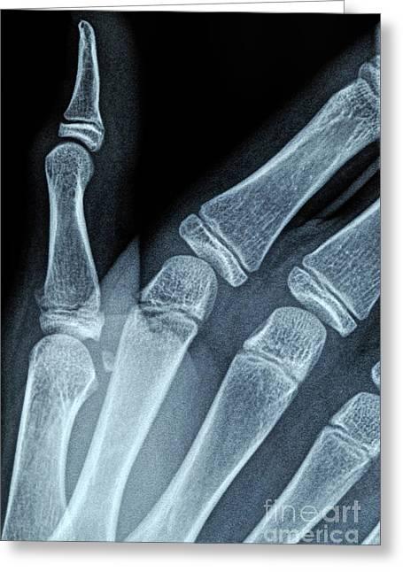 X-ray Image Of Boy's Hand Greeting Card by Sami Sarkis