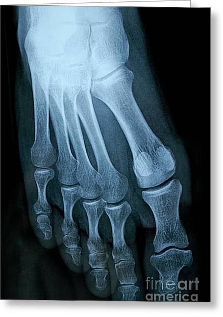 One Mature Man Only Greeting Cards - X-ray image of mature mans feet Greeting Card by Sami Sarkis