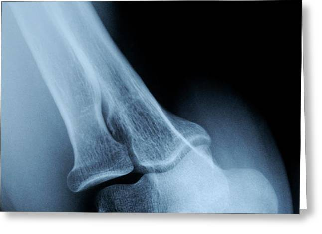 X-ray image of mature's man elbow Greeting Card by Sami Sarkis