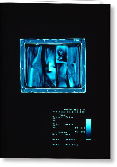 X-box Greeting Cards - X-ray Images Provide A Few Clues Greeting Card by Sisse Brimberg