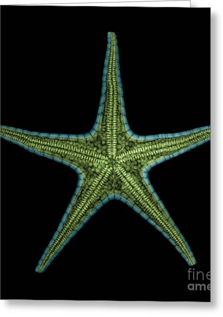 Invertebrates Greeting Cards - X-ray Of Starfish Greeting Card by Ted Kinsman