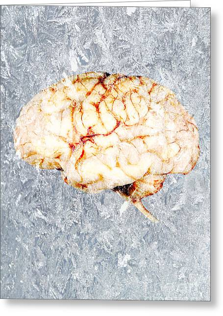 Ice Cream Illustration Greeting Cards - Brain Freeze Greeting Card by George Mattei