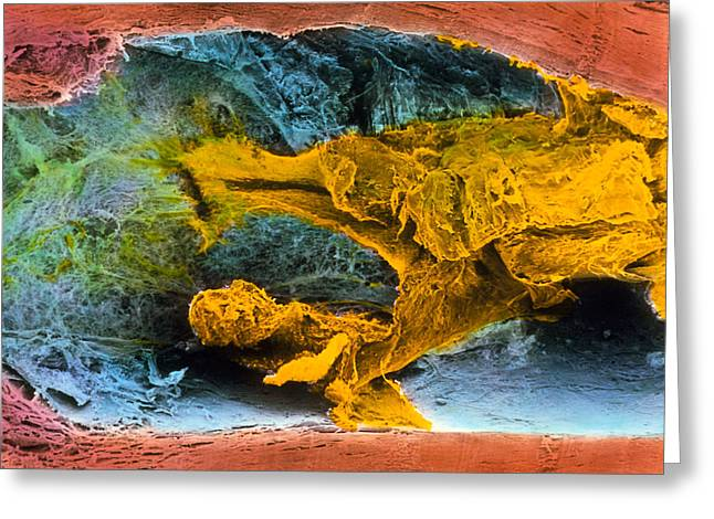Conditions Greeting Cards - Colour Sem Of Atherosclerosis In Coronary Artery Greeting Card by Professor P.m. Motta, G. Macchiarelli, S.a Nottola