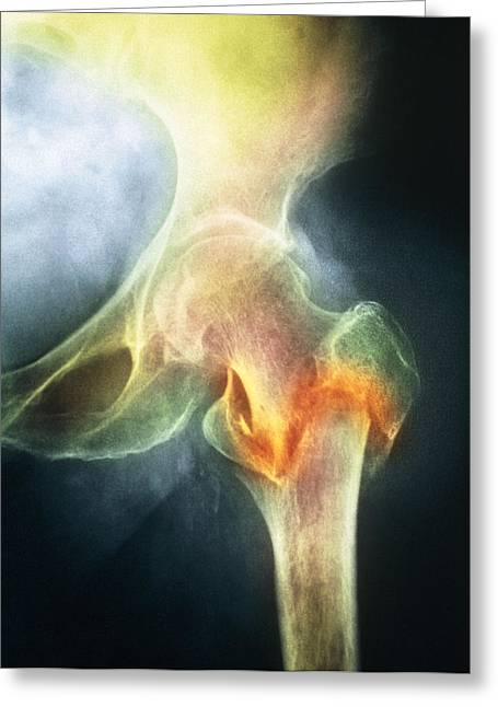 Conditions Greeting Cards - Coloured X-ray Of Femur Fracture In Osteoporosis Greeting Card by Medical Photo Nhs Lothian