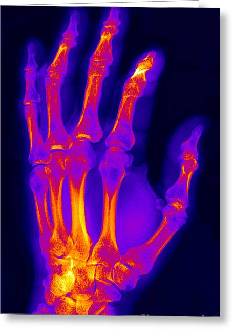 Medical X-ray Greeting Cards - Finger Fracture Greeting Card by Ted Kinsman