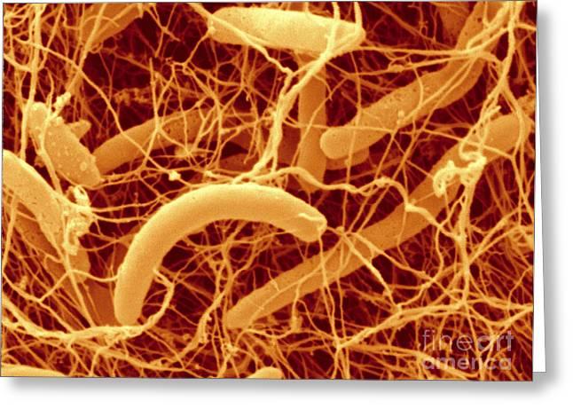 Effervescent Greeting Cards - Kombucha Bacteria, Sem Greeting Card by Scimat