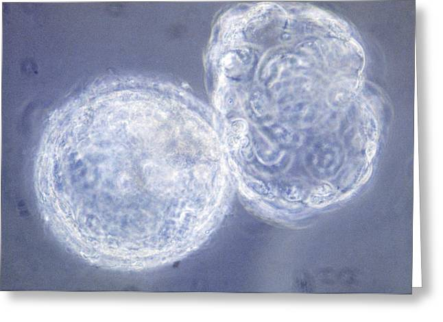 Hatching Greeting Cards - Lm Of Hatching Blastocyst In Ivf Greeting Card by Andy Walker, Midland Fertility Services