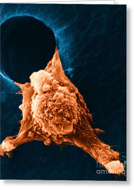 Pseudopodia Greeting Cards - Metastasis Greeting Card by Science Source