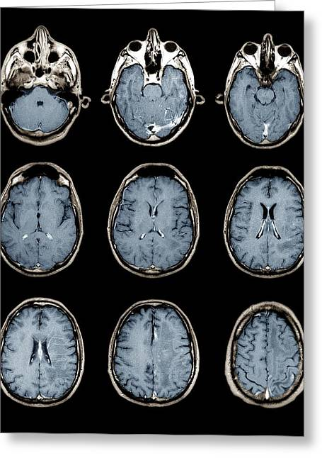 Black Top Greeting Cards - Normal Brain, Mri Scans Greeting Card by Zephyr