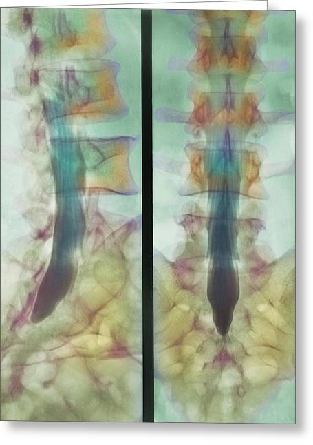 Cns Greeting Cards - Normal Spinal Cord, X-ray Greeting Card by