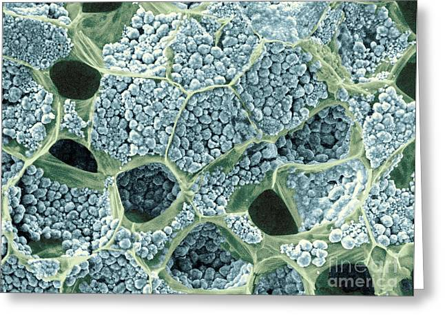 Starchy Greeting Cards - Starch Grains In Taro Root, Esem Greeting Card by Scimat