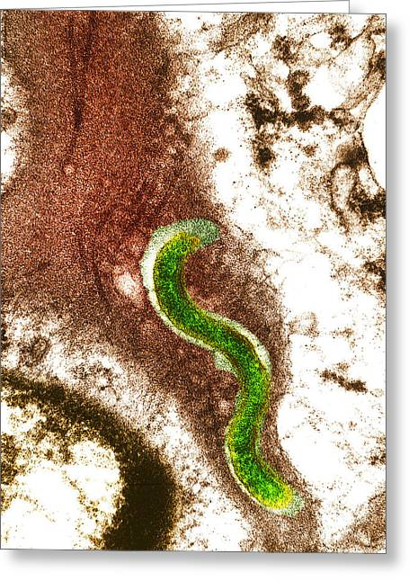 Transmission Electron Microscope Greeting Cards - Syphilis Bacterium (treponema Pallidum) Greeting Card by Biomedical Imaging Unit, Southampton General Hospital