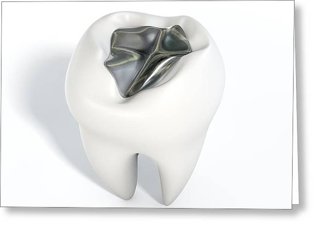 Repaired Digital Art Greeting Cards - Tooth With Lead Filling Greeting Card by Allan Swart