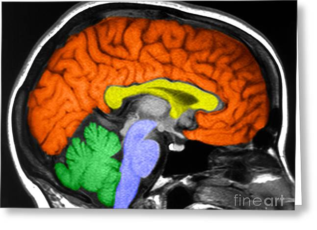 Lobe Greeting Cards - Human Brain Greeting Card by Ted Kinsman