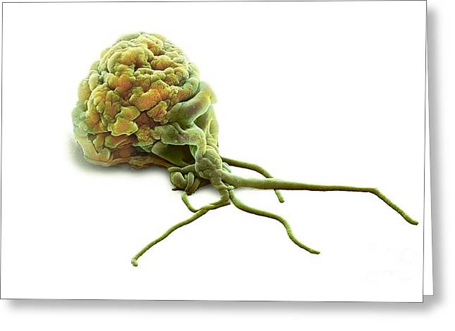 Microbiological Greeting Cards - Activated Granulocyte, Sem Greeting Card by Steve Gschmeissner