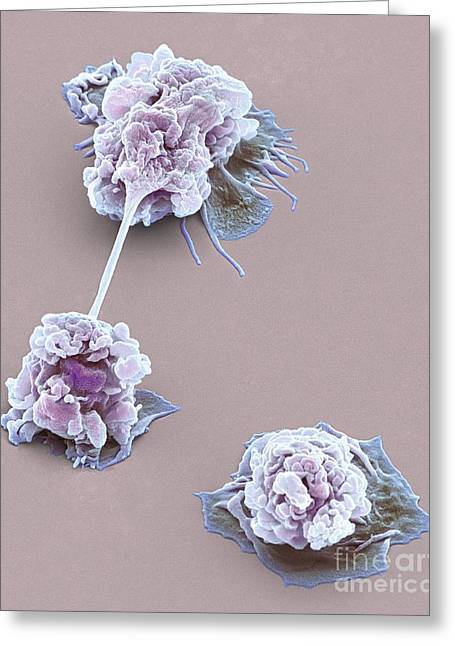 Microbiological Greeting Cards - Activated Granulocytes, Sem Greeting Card by Steve Gschmeissner