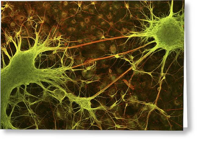 Light Micrograph Greeting Cards - Nerve Cell Growth Greeting Card by Francois Paquet-durand