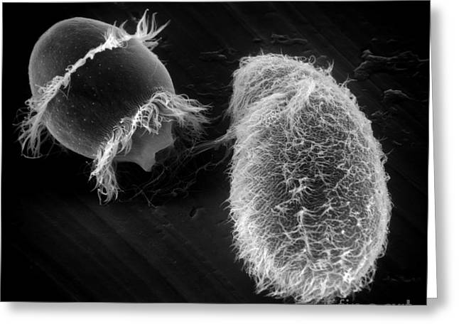 Sem Greeting Cards - Didinium Ingesting Paramecium, Sem Greeting Card by Greg Antipa