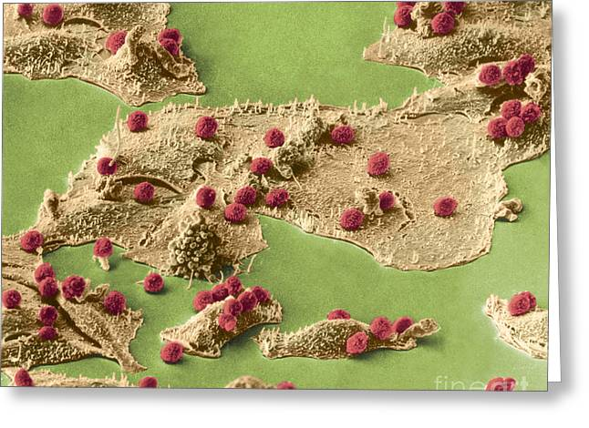 Sem Greeting Cards - Immune Cells Attacking Cancer Cells, Sem Greeting Card by Science Source