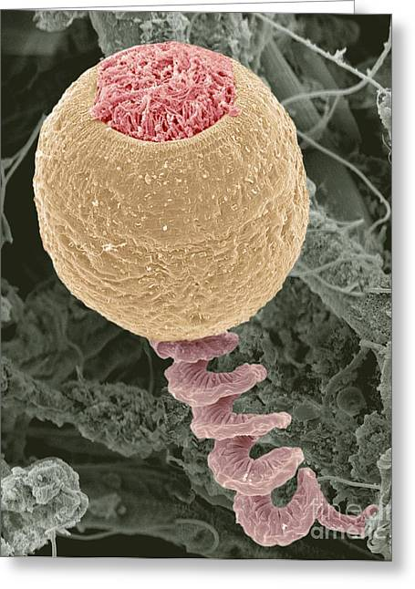 Unicellular Greeting Cards - Vorticella Protozoan, Sem Greeting Card by Steve Gschmeissner