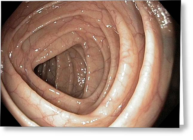 Gi Photographs Greeting Cards - Healthy Colon, Large Intestine Greeting Card by Gastrolab