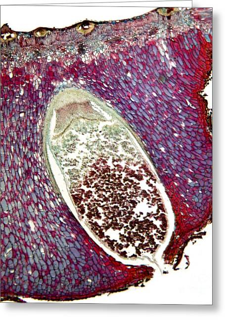 Microbiological Greeting Cards - Pear Rust Fungus, Light Micrograph Greeting Card by Dr. Keith Wheeler