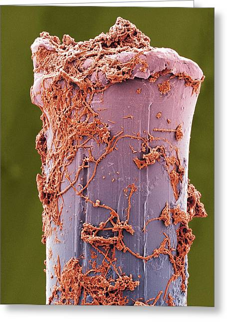 Scanning Electron Microscope Greeting Cards - Used Toothbrush Bristle, Sem Greeting Card by Steve Gschmeissner
