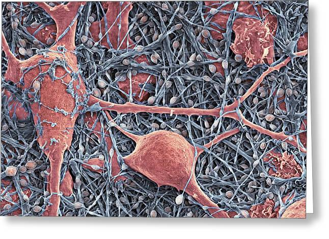 Scanning Electron Micrograph Greeting Cards - Nerve Cells And Glial Cells, Sem Greeting Card by Thomas Deerinck, Ncmir