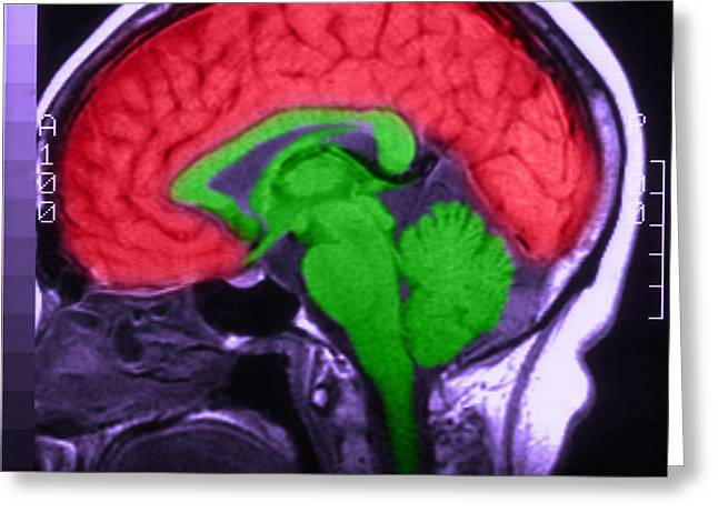 Cerebrum Greeting Cards - Mri Of Normal Brain Greeting Card by Science Source