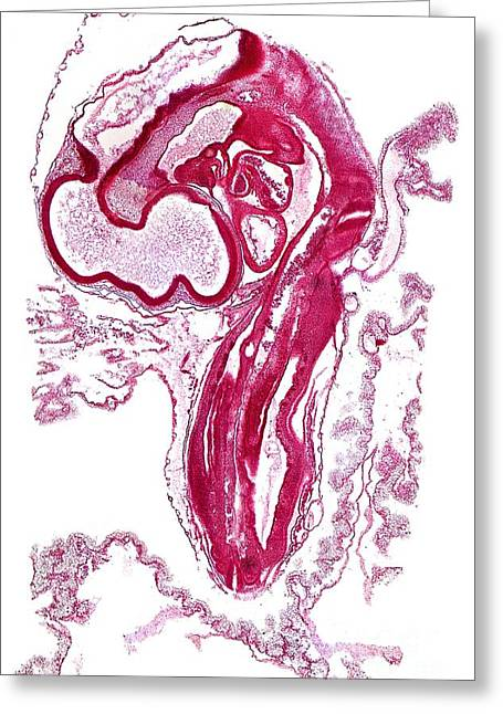 Bird Brain Greeting Cards - Chicken Embryo, Light Micrograph Greeting Card by Dr. Keith Wheeler