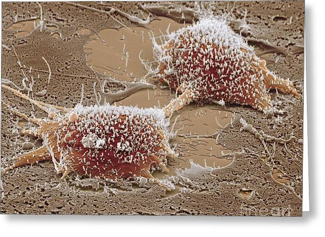 Sem Greeting Cards - Dividing Cancer Cell, Sem Greeting Card by Steve Gschmeissner
