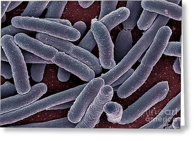 Microbiological Greeting Cards - E. Coli Bacteria, Sem Greeting Card by Ami Images