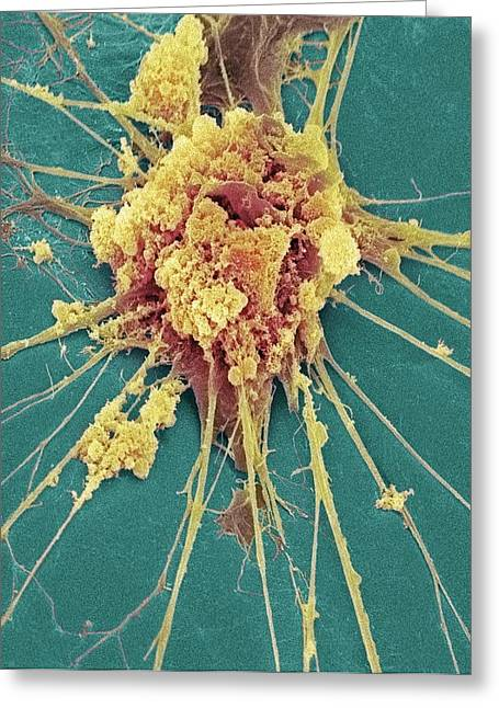 Dendrite Greeting Cards - Nerve Cell, Sem Greeting Card by Steve Gschmeissner