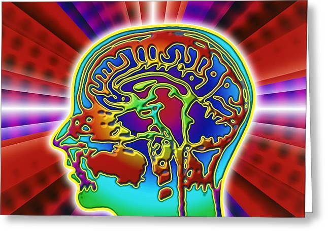 Cerebrum Greeting Cards - Abstract Coloured Mri Scan Of The Human Brain Greeting Card by Mehau Kulyk