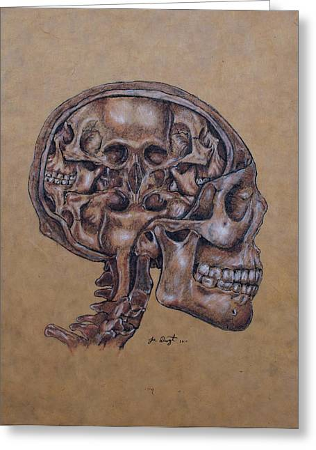 Joe Dragt Greeting Cards - Anatomy of a Schizophrenic Greeting Card by Joe Dragt