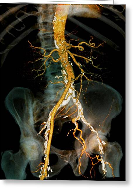 Vascular Condition Greeting Cards - Arteritis, 3d Ct Scan Greeting Card by Zephyr