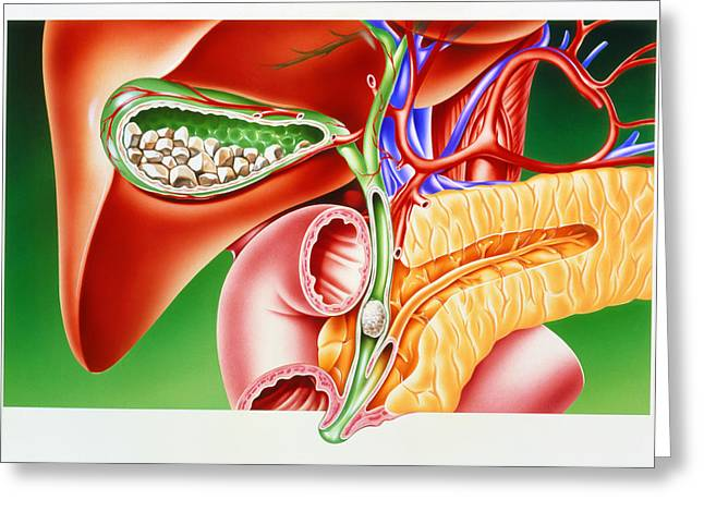 Conditions Greeting Cards - Artwork Of Gallstones In Gall Bladder & Bile Duct Greeting Card by John Bavosi
