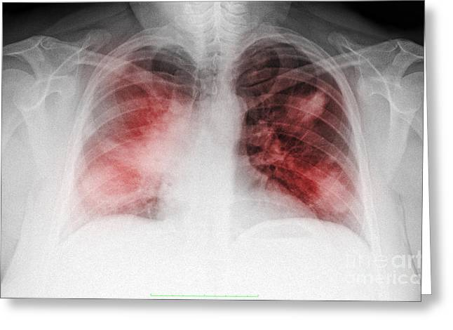 Smoker Greeting Cards - Atypical Pneumonia In Smoker, X-ray Greeting Card by Scott Camazine