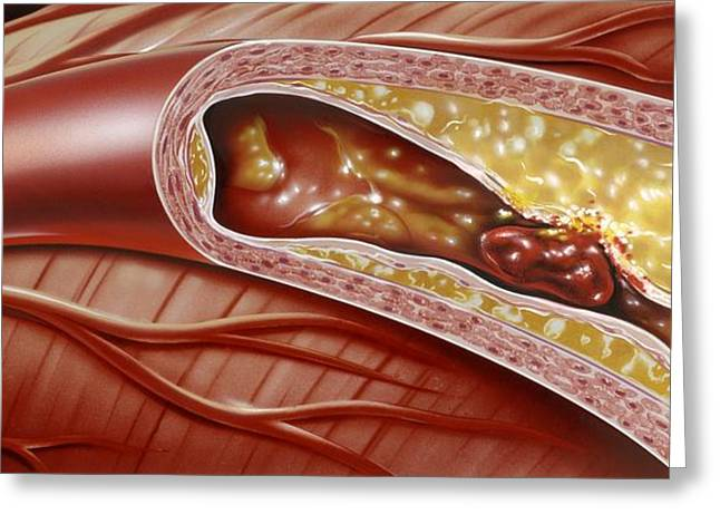 Vascular Condition Greeting Cards - Blocked Coronary Artery, Artwork Greeting Card by John Bavosi
