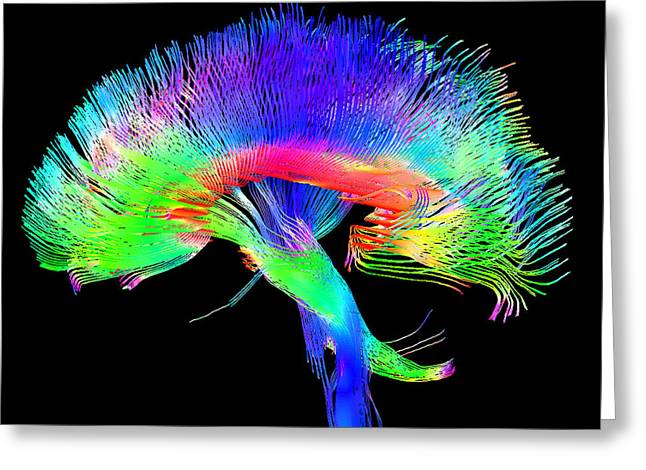 Scans Greeting Cards - Brain Pathways Greeting Card by Tom Barrick, Chris Clark, Sghms
