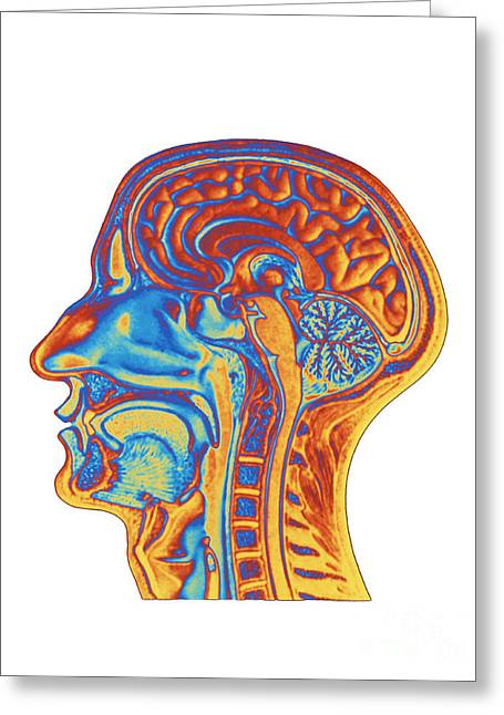 Cerebrum Greeting Cards - Brain Scan Greeting Card by Alfred Pasieka