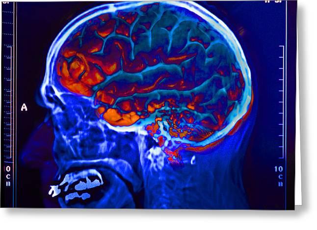Brain,x-ray, & Eegs Greeting Card by George Mattei