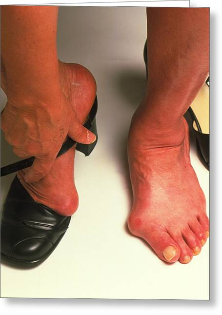 Deform Greeting Cards - Bunions Greeting Card by Victor De Schwanberg