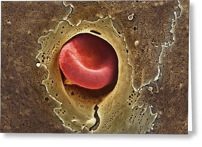 Scanning Electron Microscope Greeting Cards - Capillary, Sem Greeting Card by Thomas Deerinck, Ncmir