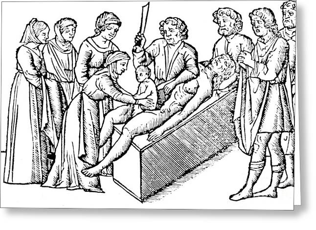 Medical Photographs Greeting Cards - Cesarean Section 16th Century Greeting Card by Science Source