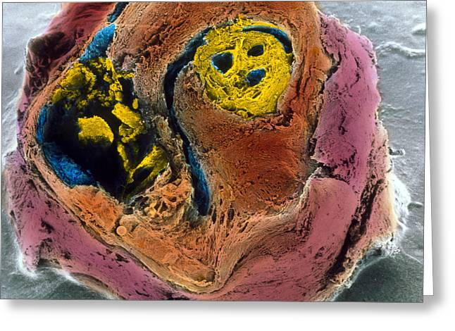Vascular Condition Greeting Cards - Colour Sem Of Atherosclerosis In Coronary Artery Greeting Card by Professor P.m. Motta, G. Macchiarelli, S.a Nottola