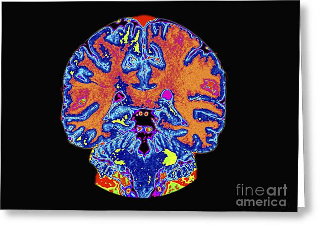 Diagnostics Greeting Cards - Coronal View Mri Of Normal Brain Greeting Card by Medical Body Scans