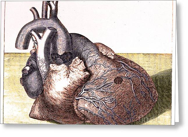 Damaged Heart Of George II, 1761 Greeting Card by Science Source